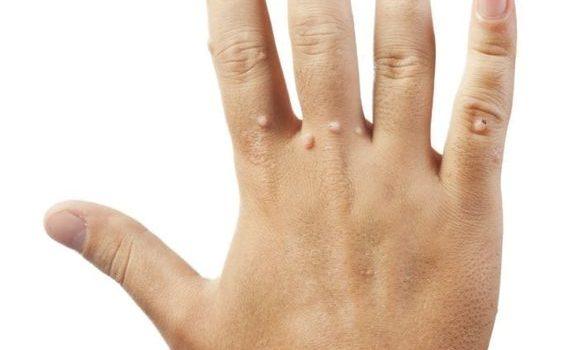 Verruche piane: cosa sono, cause, sintomi e trattamenti naturali